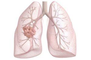 При кашле и чихании привкус крови во рту thumbnail